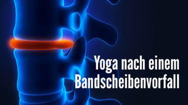 I370 208 yoga bandscheiben wirbelsaeule 1145607026