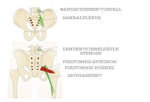 Bei der Bronchitis tut der Brustkorb und der Rücken weh